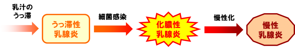 炎 発熱 乳腺